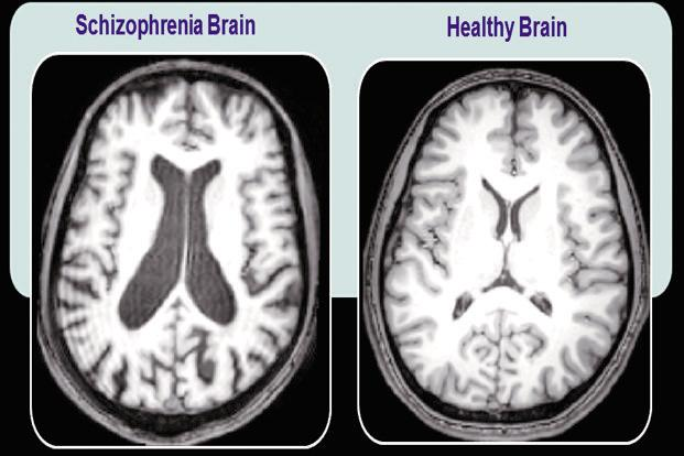 schizophrenia-brain